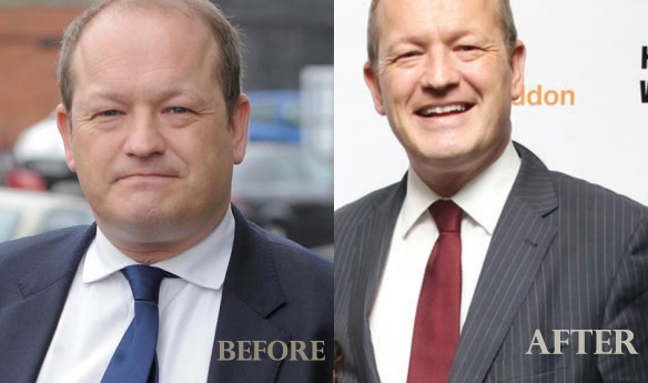 Simon danczuk BEFORE after