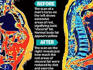 Toxins and weight loss