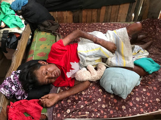 Local charity finds leprosy treatment for Peruvian patient