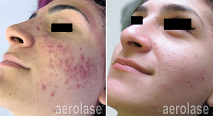 Acne Therapy 1