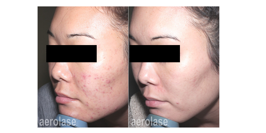 NeoClear Acne
