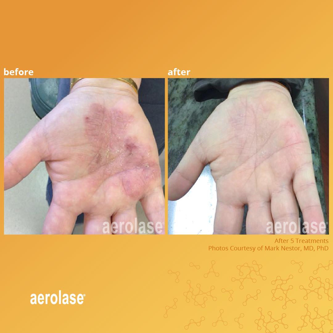 psoriasis-mark-nestor-2