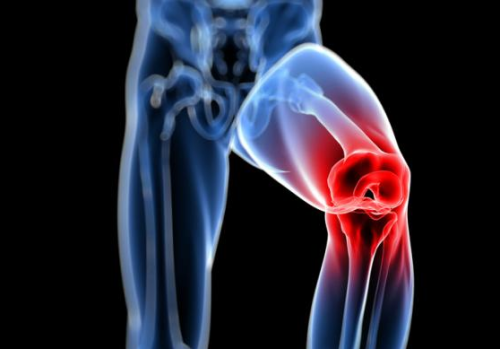 Periodontitis y la artritis reumatoide
