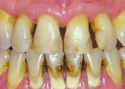 Placa bacteriana, sarro y cálculos dentales