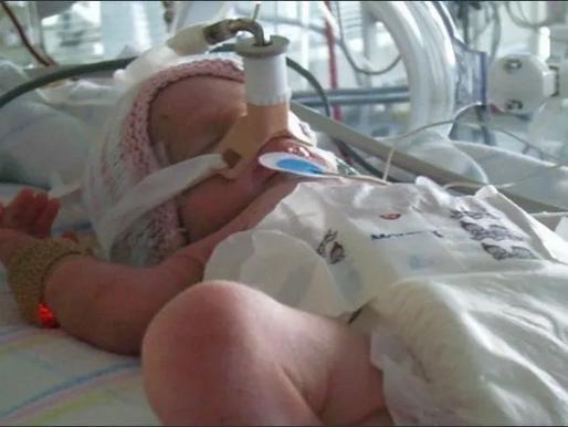 Periodontitis y los hijos prematuros