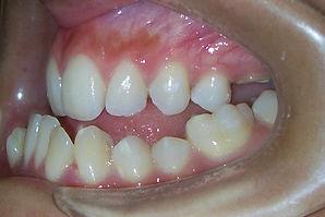 Protusión de mandibular