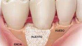injerto de hueso dental precio
