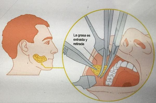 Bichectomía.jpg