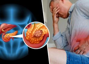Periodontitis (Diabetes triplica el riesgo)