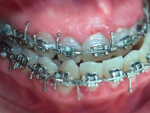La mal posición de los dientes y mal oclusión