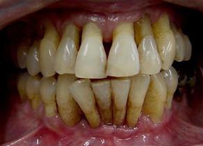 La enfermedad periodontal (Gingivitis y Periodontitis)