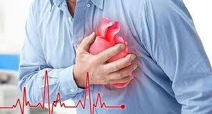 Periodontitis y el Infarto al miocardio