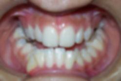 Protusión o Prognatismo mandibular