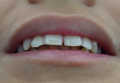 Protusión maxilar y sobremordida