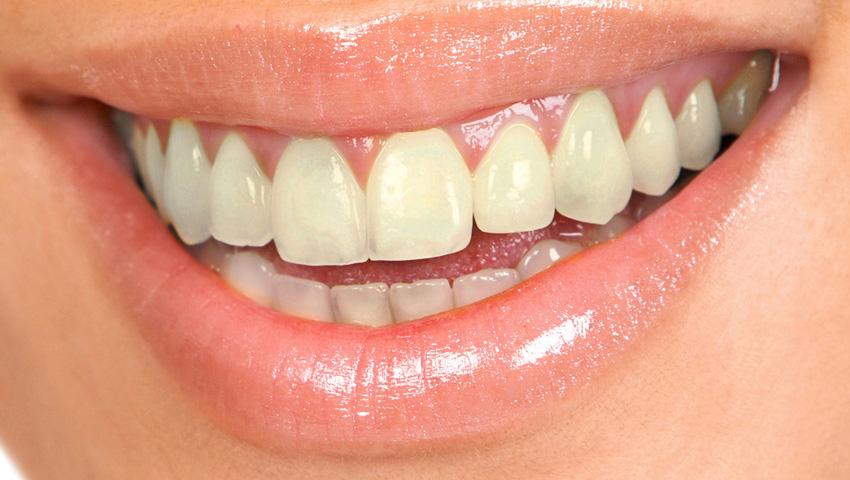 Pigmentación dental