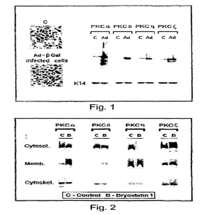 Methods and pharmaceutical compositions for healing wounds