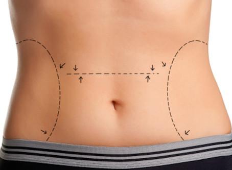 Kommer fettet tilbake etter fettsuging?
