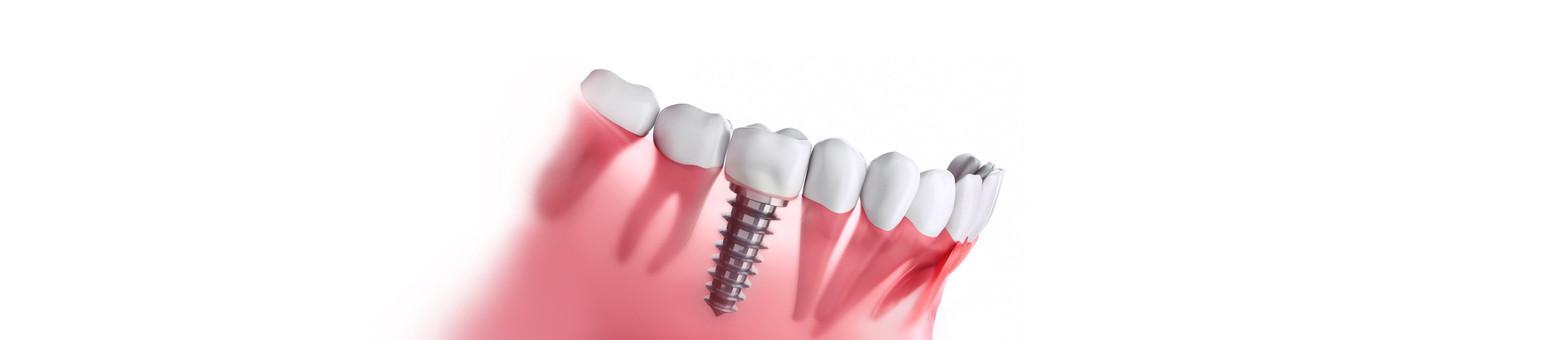 fotolia_198615306 Implantologie.jpg