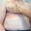 Thumbnail: Module 2 - Mastectomy Assessment