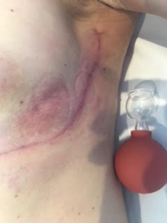 Breast cancer: Lateral Breast Scars