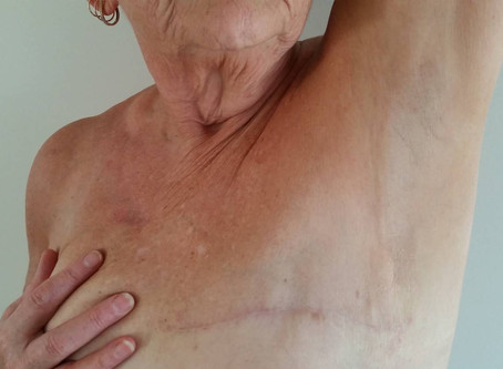 Mastectomy pain: new care required