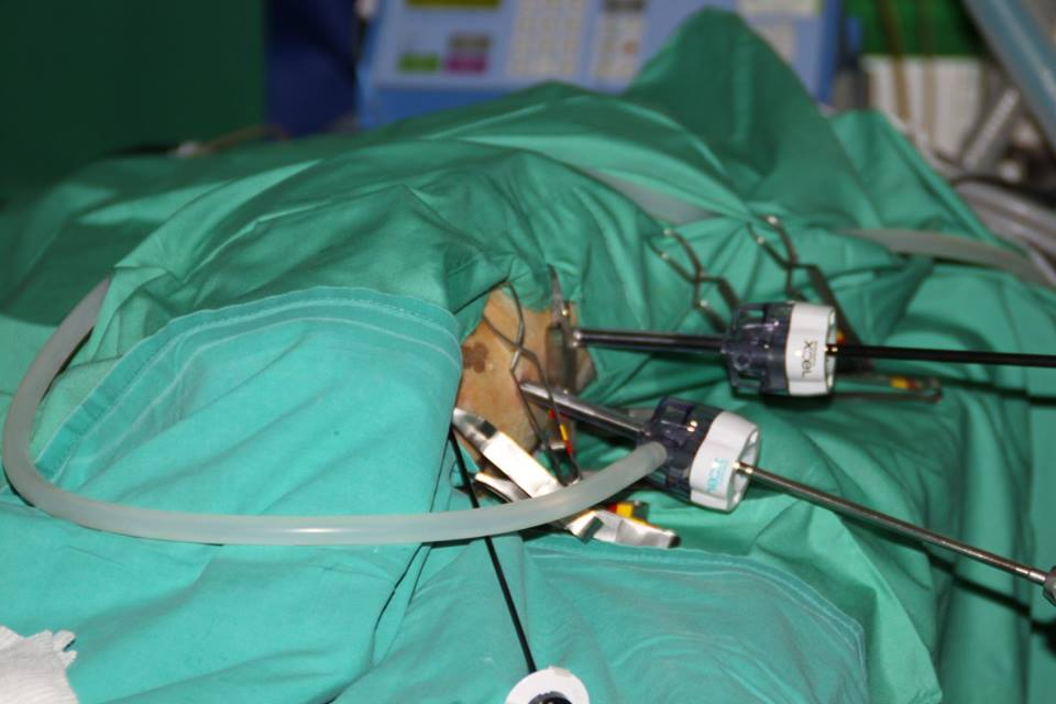 Ovariectomía laparoscópica