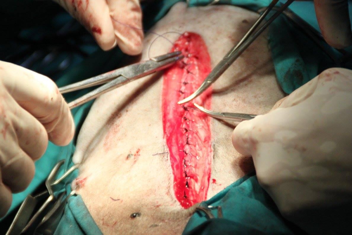 SOLVET colecistectomía