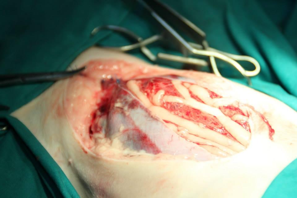 SOLVET rotura uretral