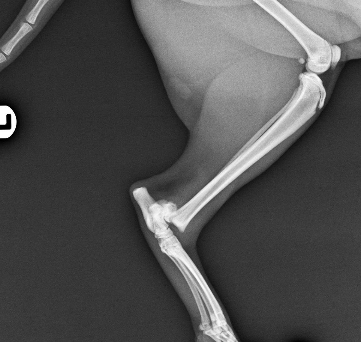 SOLVET fractua distal tibia