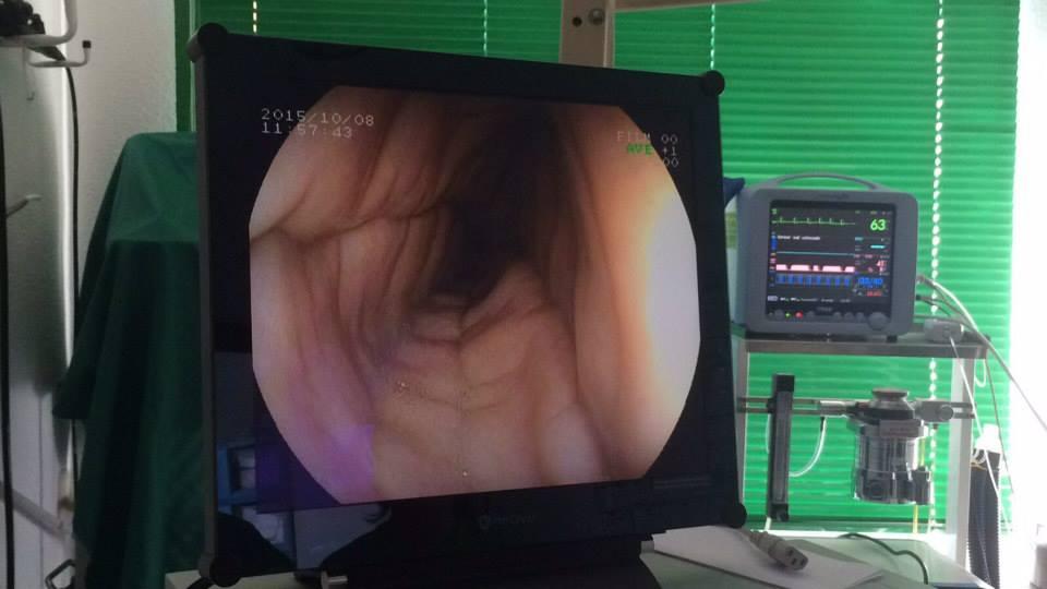 ENDOSCOPIA extracción aguja estómago