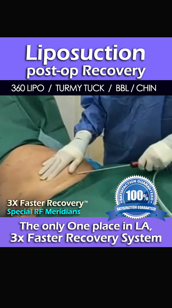 Liposuction Post-op Recovery Care