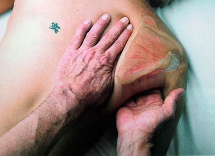 Frozen shoulder[adhesive capsulitis]
