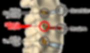 Lumbago, ciatica y hernia discal