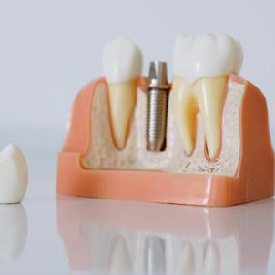 Le Cobalt remplacé par le Titane pour les prothèses dentaires
