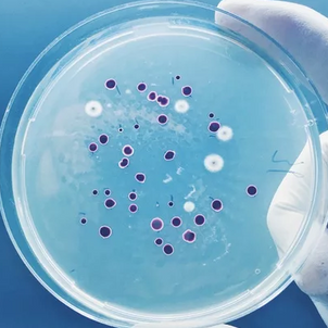Grâce à l'IA, des chercheurs ont découvert l'un des plus puissants antibiotiques au monde