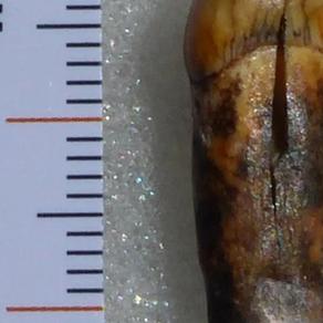 Une dent humaine vieille de 70000 ans découverte dans la région de Toulouse