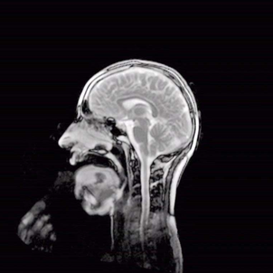 Vidéo insolite : les muscles de la bouche filmés par IRM