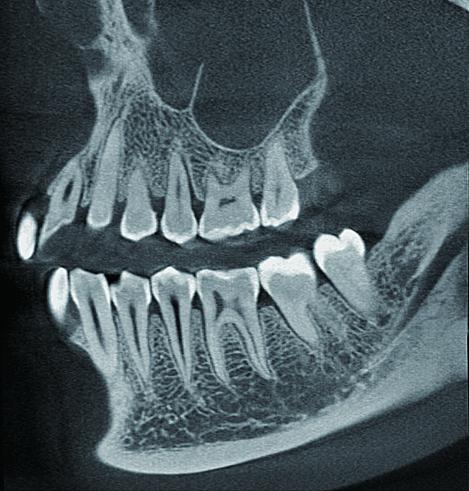 Haute résolution Dentea