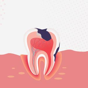 Perte de dents, maladies gingivales… La Covid à l'origine de troubles bucco-dentaires sérieux ?