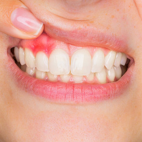 Les Omega-3 peuvent régénérer le tissu parodontal enflammé