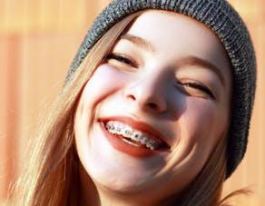 Les adolescents français ont les dents en meilleur état qu'il y a une dizaine d'années