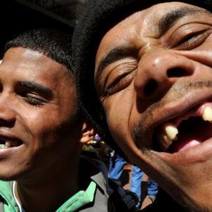 En Afrique du Sud, pour se sentir plus beau et séduisant, on se fait arracher les dents de devant