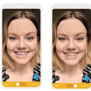 Une application qui permet de visualiser son futur sourire
