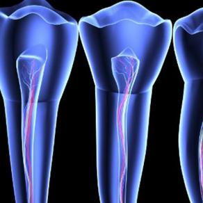 Régénérer entièrement les racines des dents, et si cela devenait possible ?