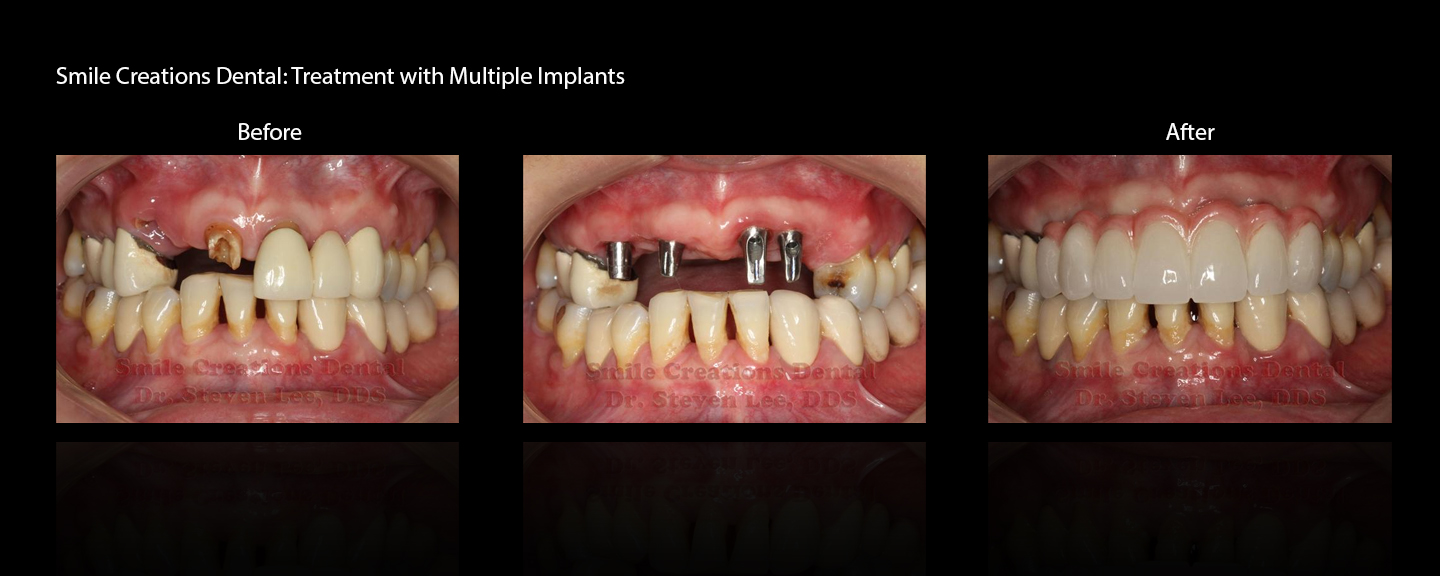 Treatment by Dr. Steven Lee, DDS