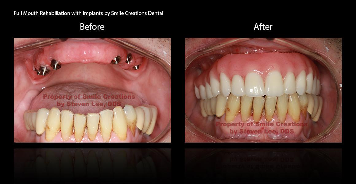 Treatment by Dr. Steven Lee