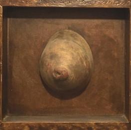 Breast Apart, 2000