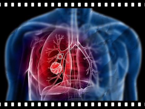 La pandemia y el cancer