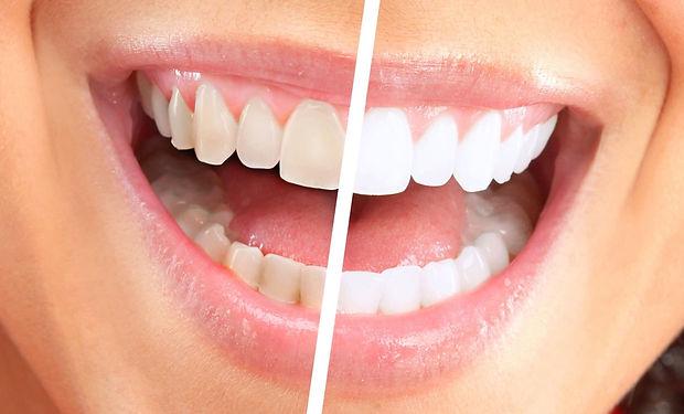 Отбеливание зубов (1).jpg