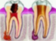periodontit-2.jpg